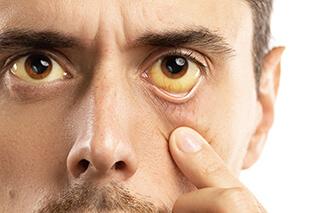 Hypnose gegen Sucht